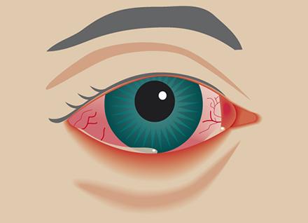 infektion i ögat
