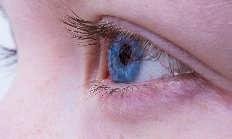 rinner ur ögonen